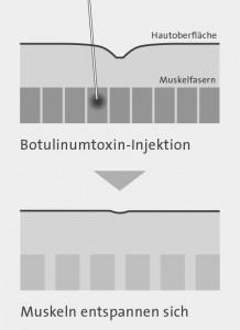 falten_botulinumtoxin